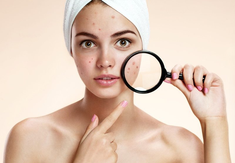 Do not remove facial hair when the skin is having problems like acne, inflammation ...